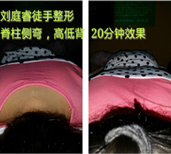 胸椎矫正(驼侧弯背矫正)