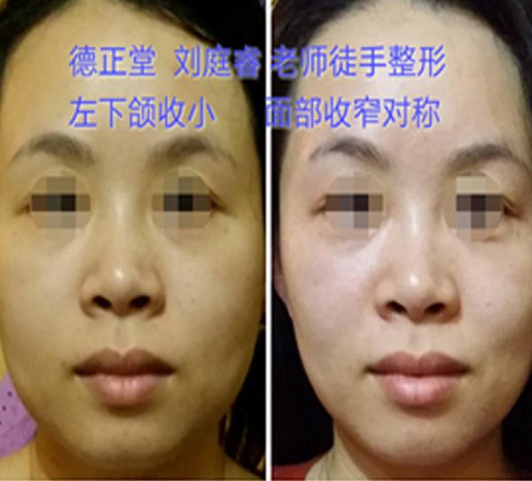 脸部缩窄、左下颌缩小、童颜术