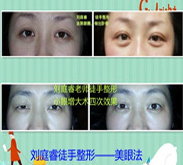 美眼术—黑眼圈、卧蚕、小眼扩大